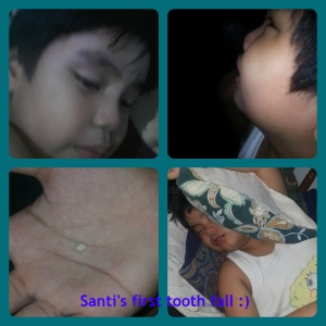 santi's tooth loss collage